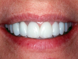 Glenda's Smile After Tooth Implants
