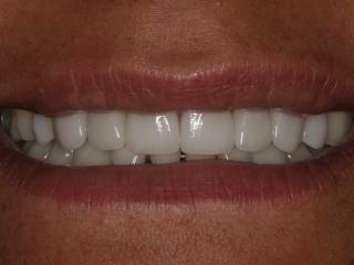 "Close-up of Cynthia""s Smile Before Veneers"
