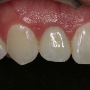 Danielle's Closeup After Dental Implants