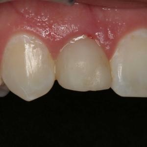 Danielle's Closeup Before Dental Implants