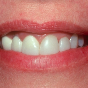 Glenda's Smile Before Implants