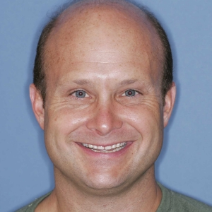 Greg before dental implants at Montgomery Dental Care