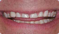 Greg's teeth before his dental implants at Montgomery Dental Care