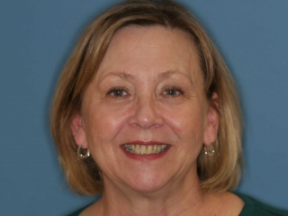 Jane Before Upper Teeth Veeners