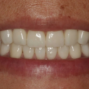 Smile Close-Up After Ceramic Veneers and Crowns