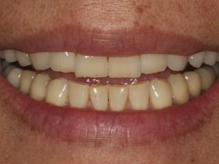 Smile Close-Up Before Ceramic Veneers and Crowns