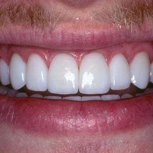 Jason's Close-up Smile After Veneers