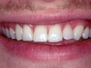 Jason's Close-up Smile Before Veneers