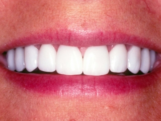 Jeri's Close-up Smile After Veneers