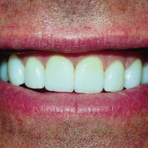 Joe's Smile After Dental Veneers