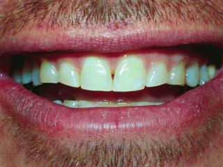 Joe's Smile Before Dental Veneers