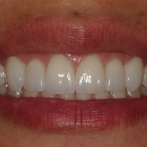 Johanna Close-up After Smile Whitening and Veneers