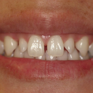 Johanna Close-up Before Smile Whitening and Veneers