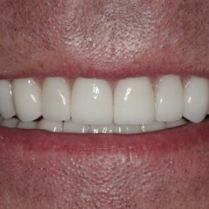 John's Smile After Porcelain Veneers & Porcelain Crowns