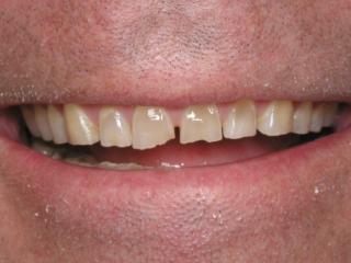 John's Smile Before Porcelain Veneers & Porcelain Crowns