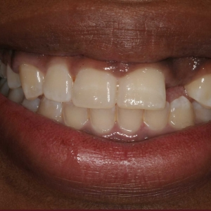 Jori's Smile Before Dental Implants