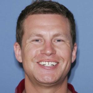 Josh's teeth before dental veneers