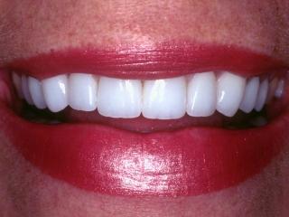 Joy's Smile After Upper Porcelain Veneer Dentistry