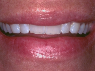 Joy's Smile Before 10 Upper Porcelain Veneers