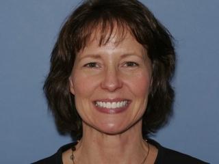 Julie After Veneers at Montgomery Dental Care