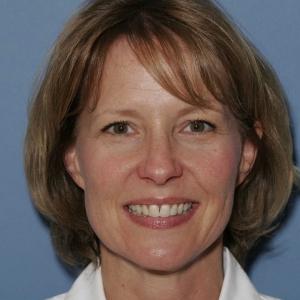 Julie Before Veneers at Montgomery Dental Care