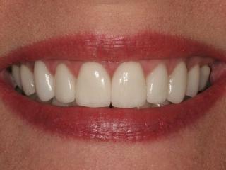 Julie Close-Up After Veneers at Montgomery Dental Care