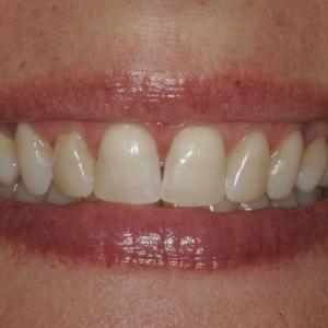 Julie Close-Up Before Veneers at Montgomery Dental Care
