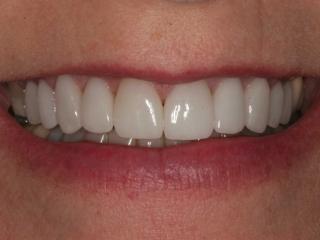 Julieanne' Smile After Upper Teeth Veneers