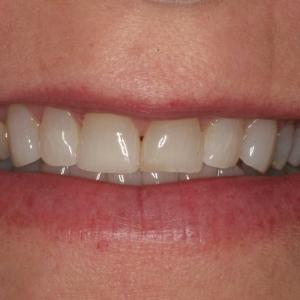 Julieanne' Smile Before Upper Teeth Veneers