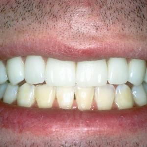 Kevin's Teeth Up Close After Dental Veneers