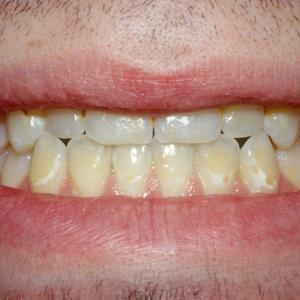 Kevin's Teeth Up Close Before Dental Veneers