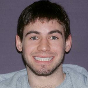 Kevin After Dental Veneers