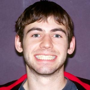 Kevin Before Dental Veneers