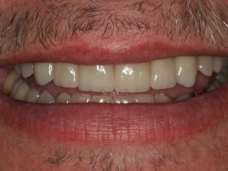 Close-up Smile After Veneers at Montgomery Dental Care