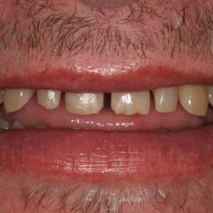 Close-up Smile B/4 Veneers at Montgomery Dental Care