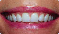 Linae's teeth after veeners