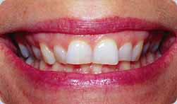 Linae's teeth before veneers