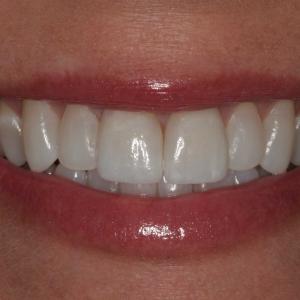 Lisa's Smile After Porcelain Veneers
