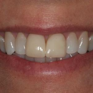 Lisa's Smile Before Porcelain Veneers