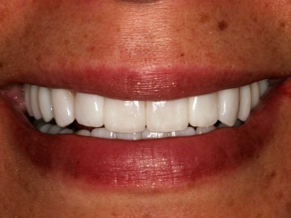 Lorena Close-Up After Getting Porcelain Veneers and Crowns