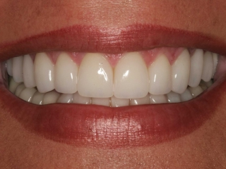 Loida's Smile After Whitening & Veneers