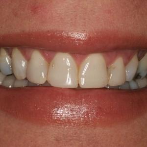 Loida's Smile Before Whitening & Veneers