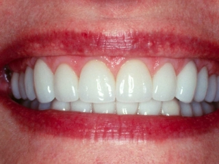 After Getting Porcelain Veneers and Porcelain Crowns Close-Up