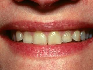 Lynn Close-Up Smile Before Veneers