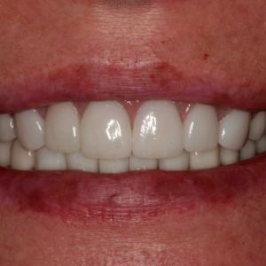 Mel Close-Up After Porcelain Veneers and Crowns