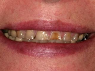 Mel Close-Up Before Porcelain Veneers and Crowns