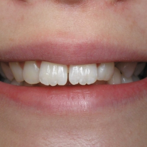 Micayala's Close-up Smile Before Orthodontics