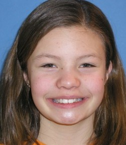 Mickayla before orthodontics at Montgomery Dental Care