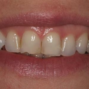 Nina's Smile Before New Porcelain Veneers