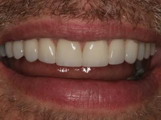 Close-up Smile After Dental Veneers